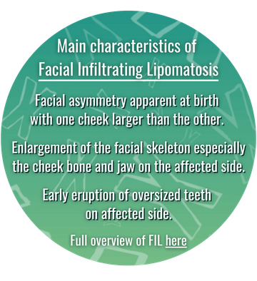 Main features of Facial Infiltrating Lipomatosis